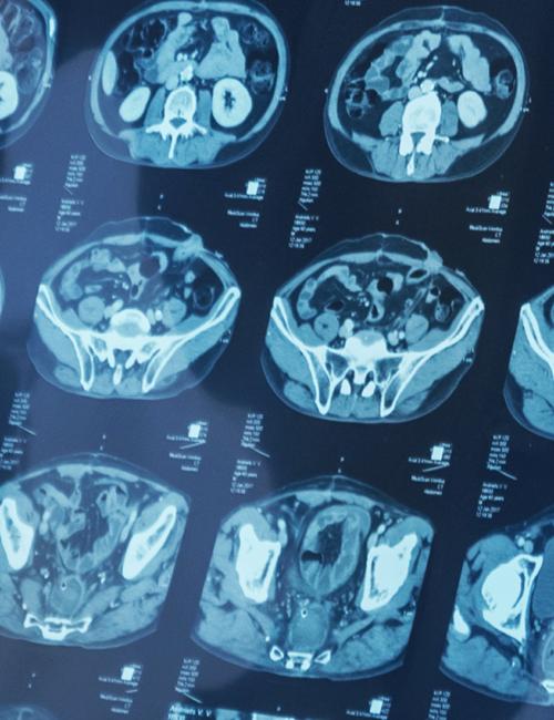 Planches d'imagerie médicale